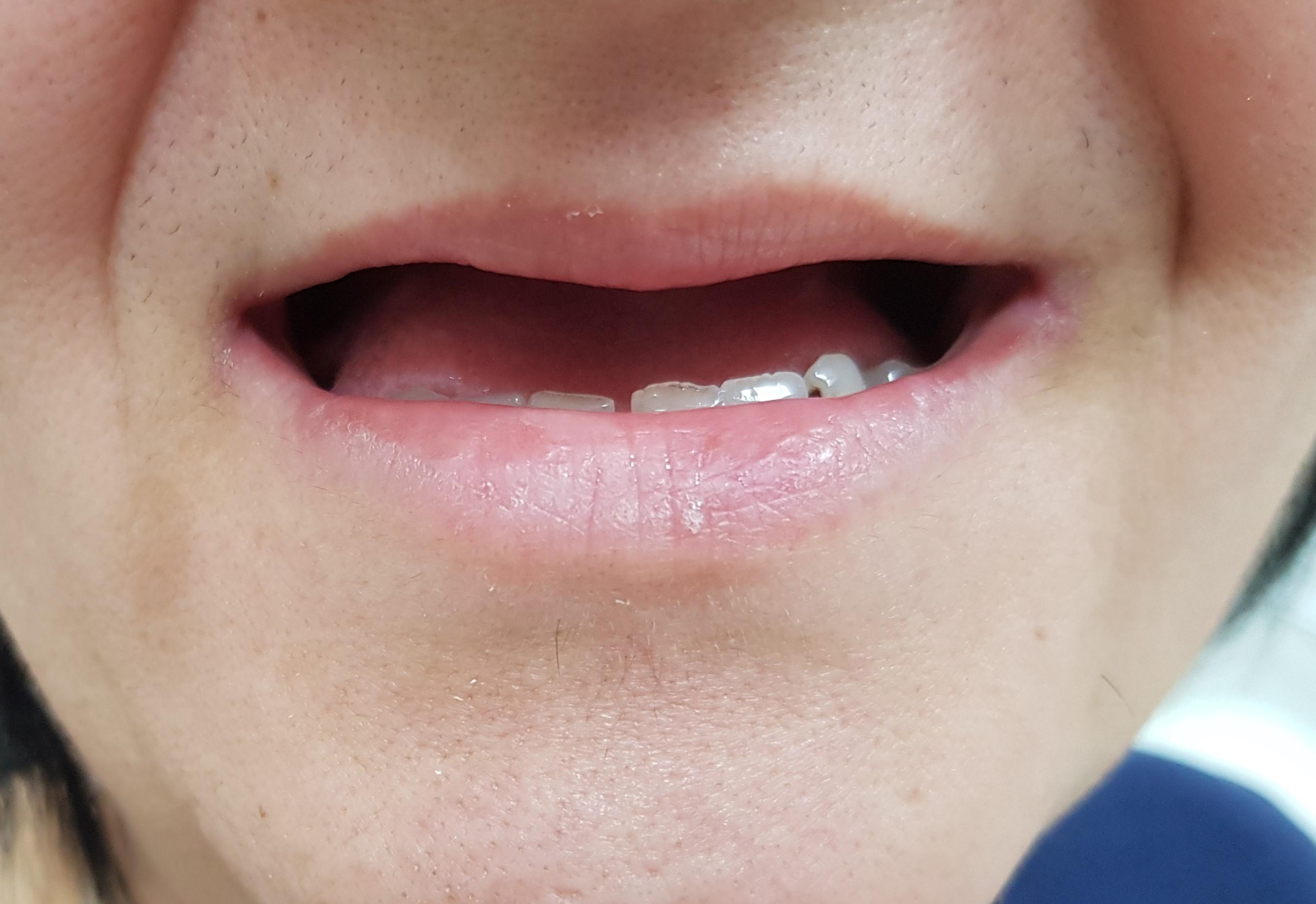 Pre proteze za zube