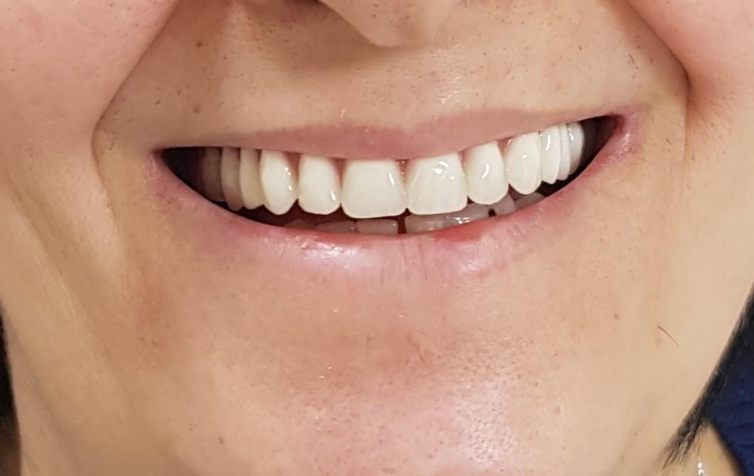 Posle proteze za zube