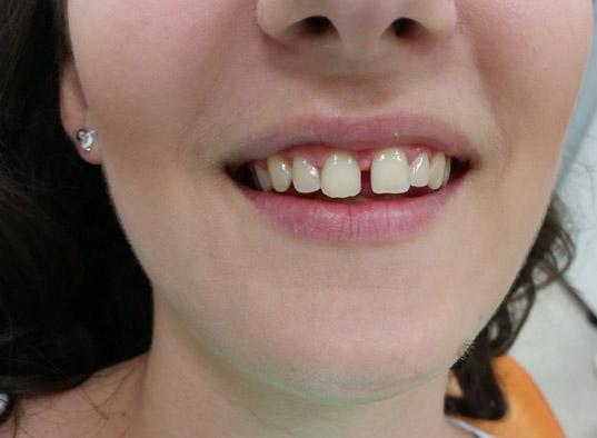 Fasete za zube novi sad