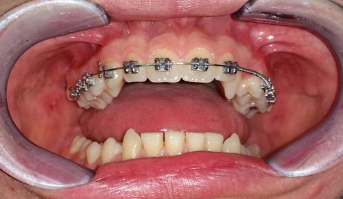 proteze-za-ispravljanje-zuba