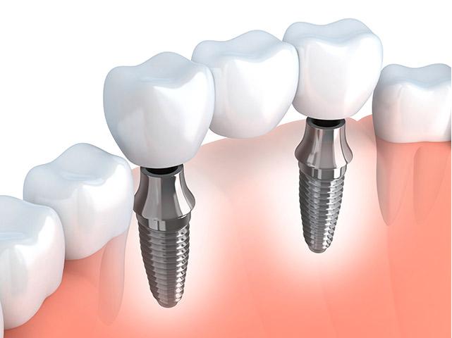 Imlantati imaju za ulogu da nadoknade izgubljene korenove u kosti gorenj ili donje vilice.