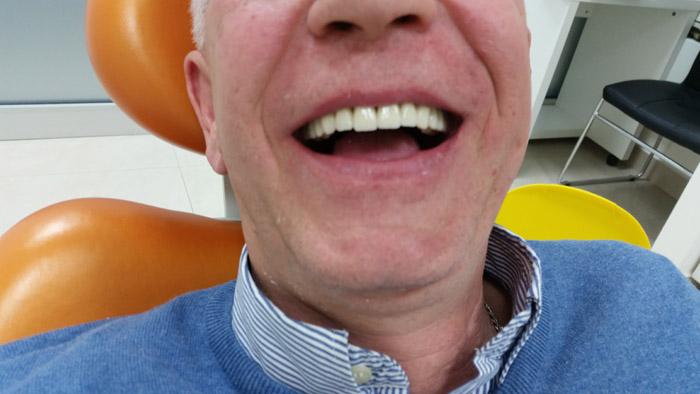 Krunice za zube novi sad
