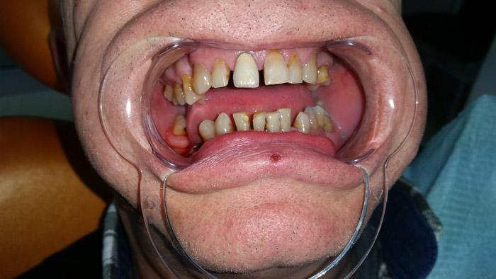 navlake za zube