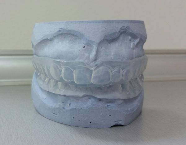 stitnik.za.zube.splint.za.zube