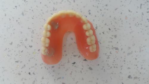Zubna proteza novi sad